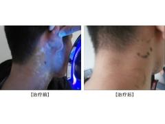颈部 白癜风痊愈案例